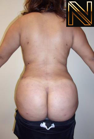 Brazilian Butt Lift Actual Patient After