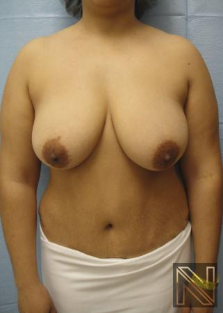 Breast Lift Actual Patient Before