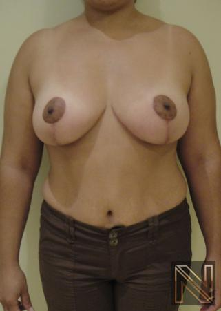 Breast Lift Actual Patient After