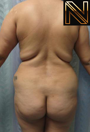 Brazilian Butt Lift Actual Patient Before