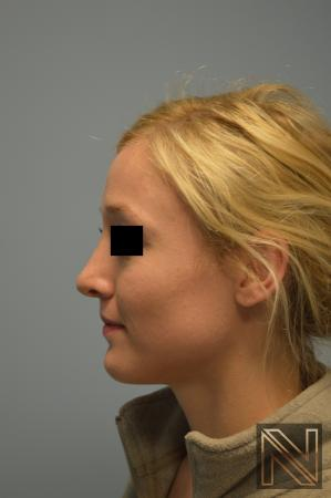 Rhinoplasty Actual Patient After