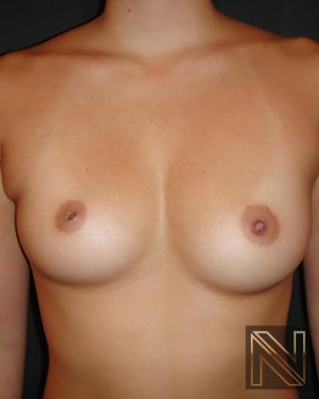 Inverted Nipple Surgery Actual Patient Before