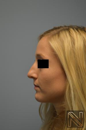 Rhinoplasty Actual Patient Before