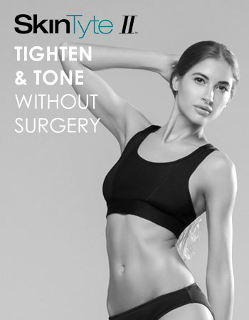 SkinTyte ll Tighten without surgery